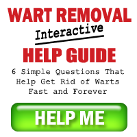 Wart Removal Help Guide